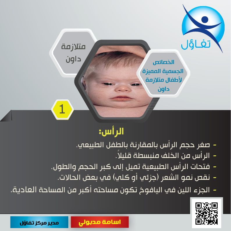 Downsyndrome Down Syndrome Tafaol Tafolcenter Tafaol Center Bh اسامة مدبولي مركز تفاؤل متلازمة داون البح Incoming Call Incoming Call Screenshot Signs