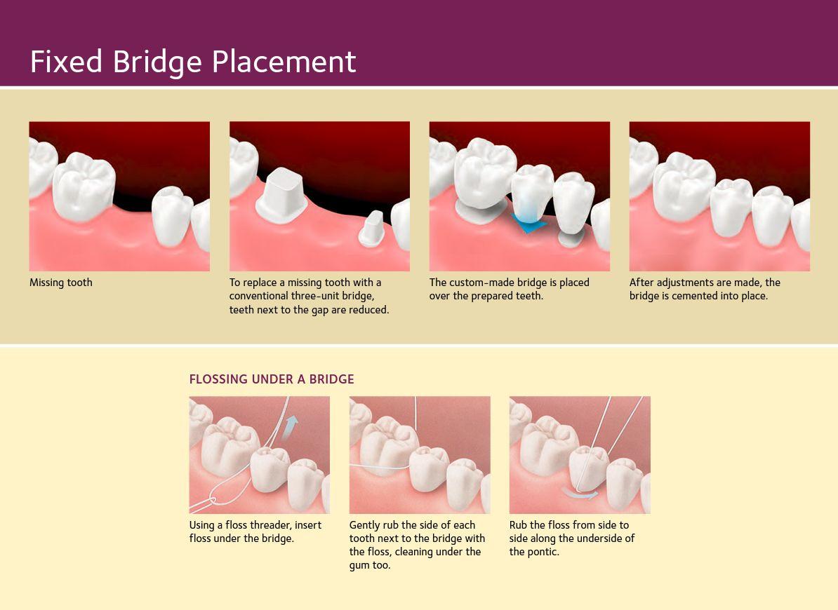 Dental Bridges | Dental Procedure PLAQUES | Pinterest | Dental ...