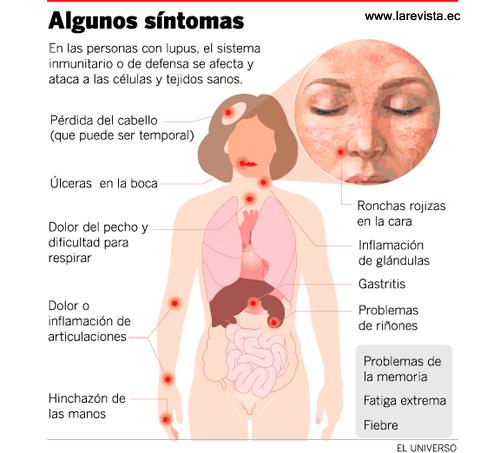 lyme sintomas y tratamiento