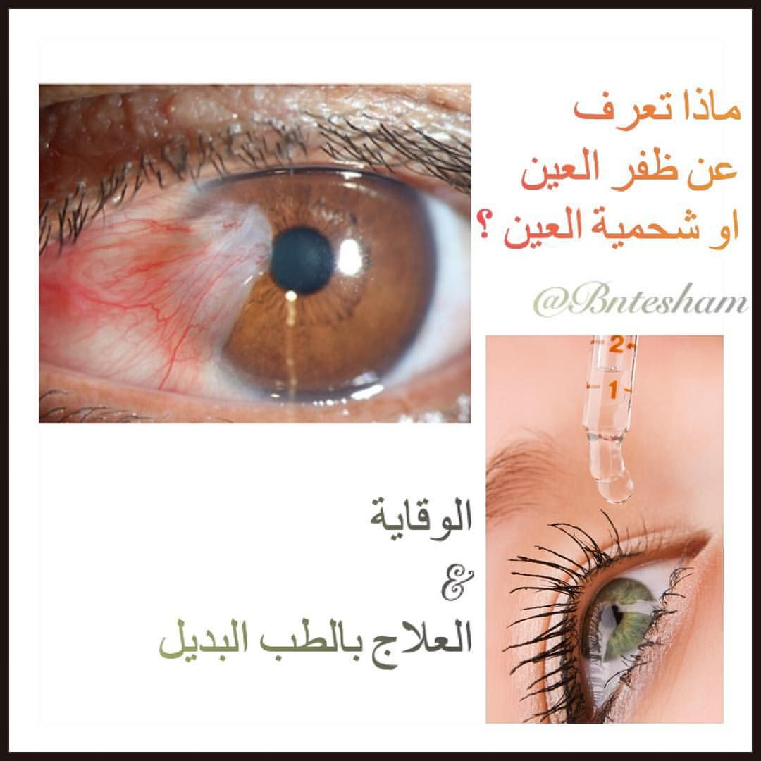 Pin On أمراض العيون