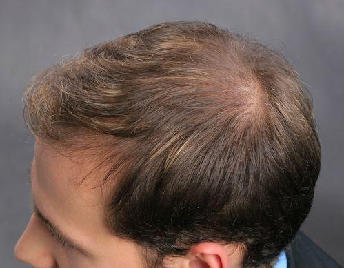 Frisuren Männer Lichtes Haar | Pinterest | Frisur mann, Lichtlein ...