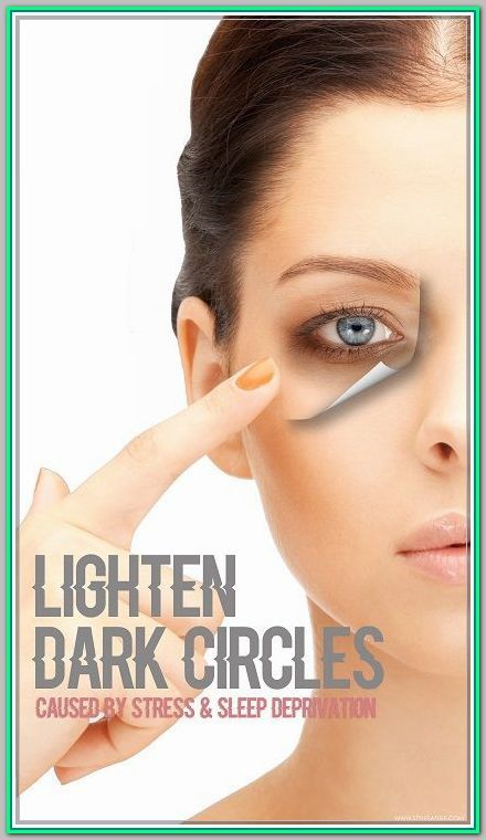 Eye Care Tips For Dark Circles You Must Use To Believe >>> Learn more by visiting the image link. #eyecarefordarkcircles #darkcircle