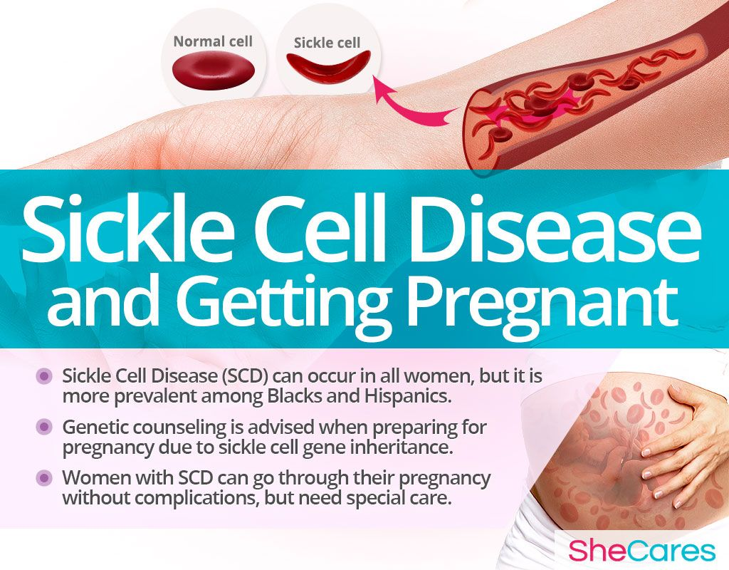 Having Sickle Cell Disease Carries Serious Risks Of