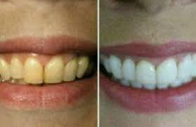 Clareamento Dental Caseiro Com Bicarbonato De Sodio Maquiagem