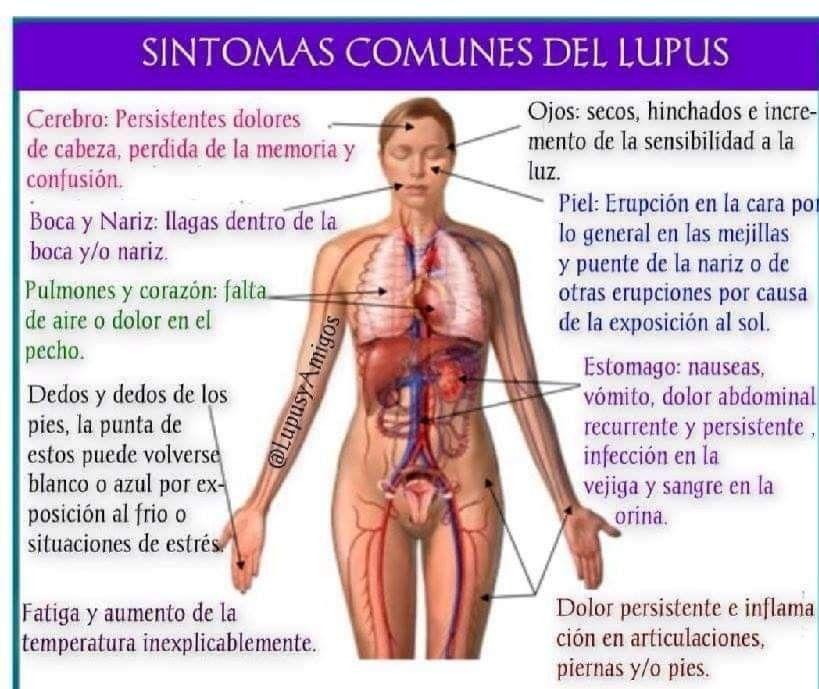 enfermedad autoinmune que causa dolor en las articulaciones y fatiga