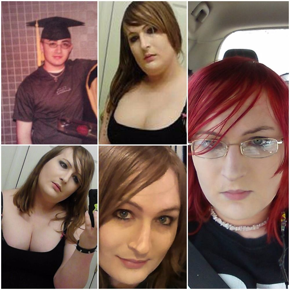Male to female hrt transition-5624