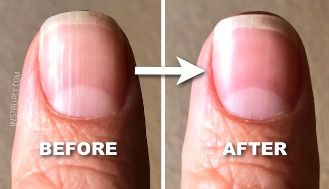 What Are Those Vertical Lines On Your Nails And It Means About Health Instrupix
