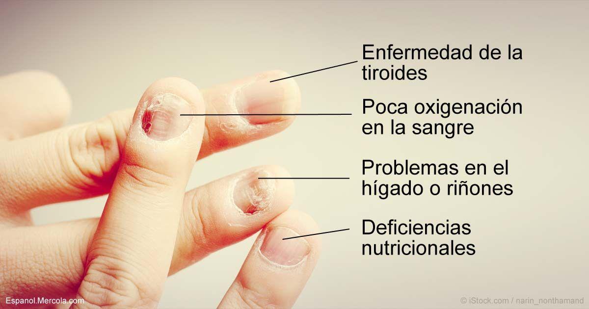 10 Síntomas de las Uñas y Lo Que Significan para Su Salud | Manchas ...