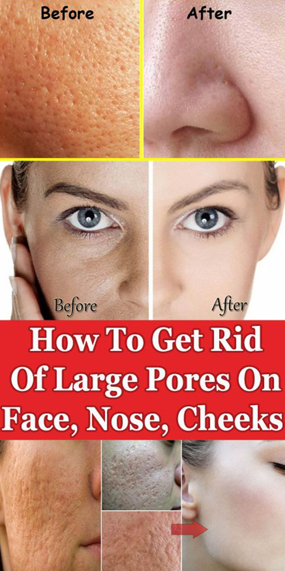 How To Get Rid Of Red Pores On Nose