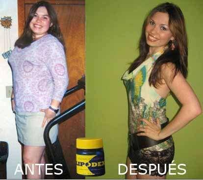 Lipodex baja de peso 100% naturalmente