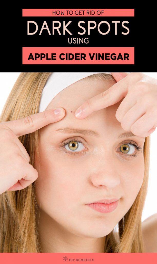 Does Vinegar Get Rid Of Spots