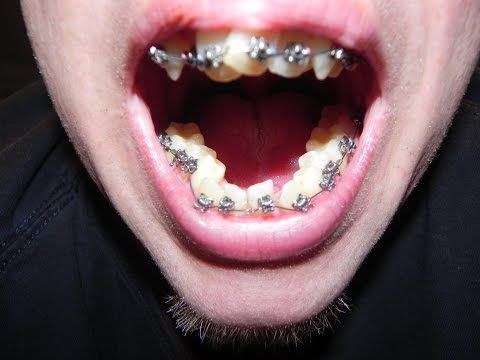 """Wear Your Retainer After Adult Braces! """"Before and After ..."""