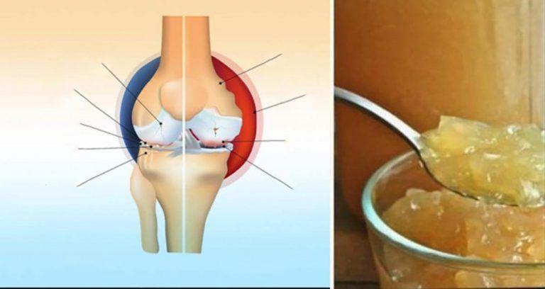 Aluat de tratament articular, Cum să vă opriți picioarele de la durere după un antrenament,