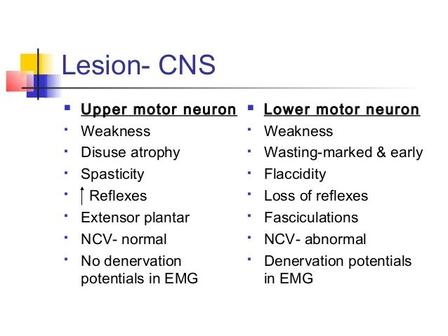 Cns lesions biomed exam 3 pinterest internal medicine for Upper motor neuron syndrome symptoms