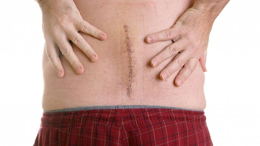 So Geht Man Mit Narben Um Narben Genesung Nach Operation