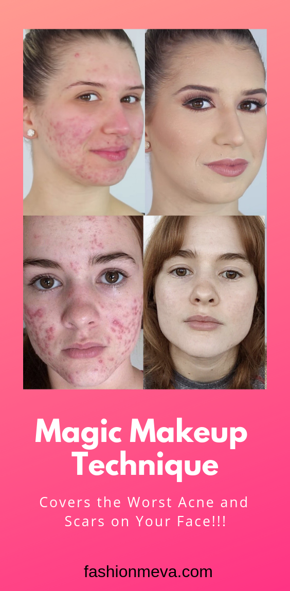 How to Cover Acne with Makeup (Like a Makeup Artist