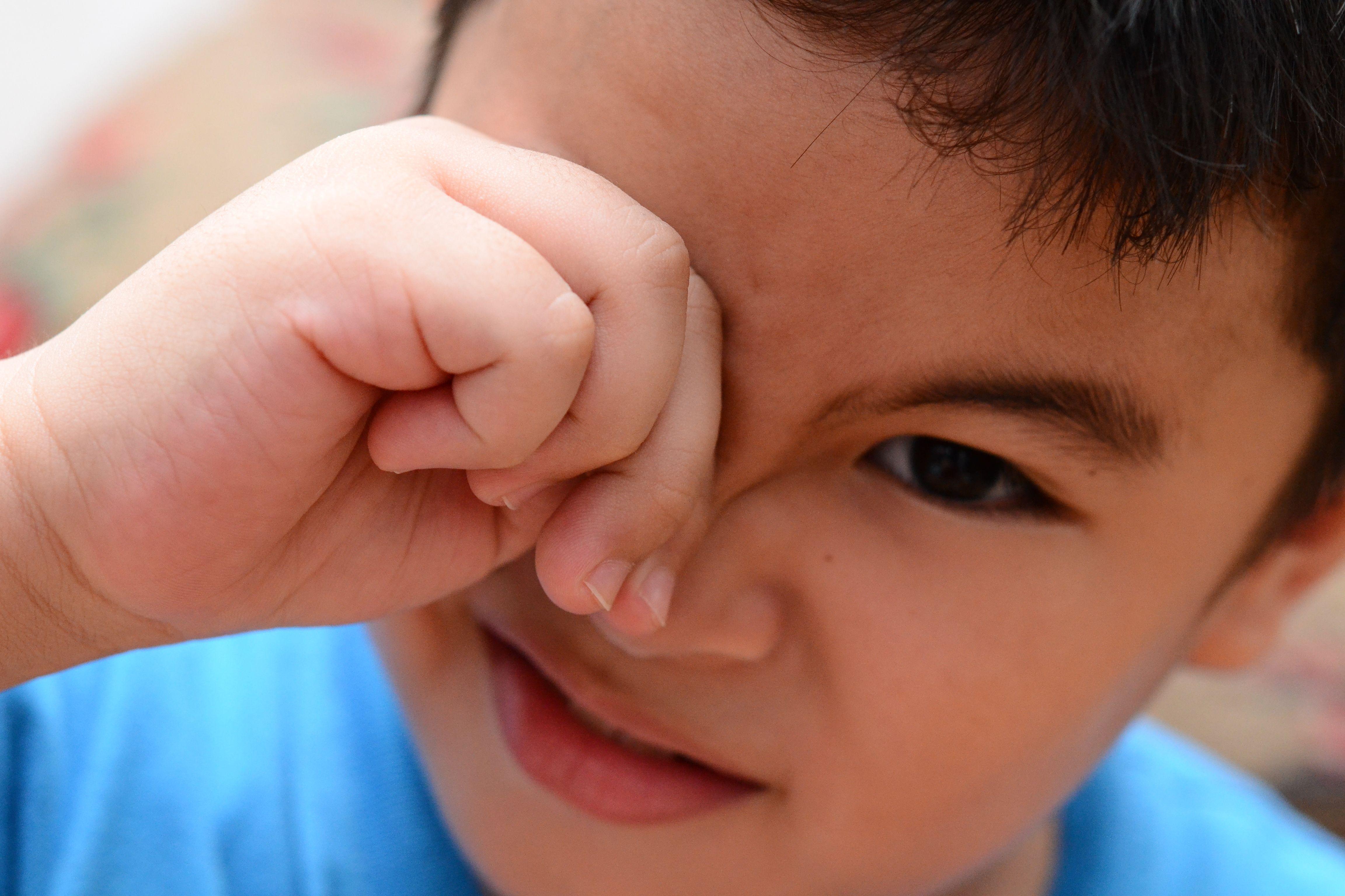 Gözlerdeki Kaşıntı Nasıl Geçer: Göz Kaşıntısına Doğal Çözüm