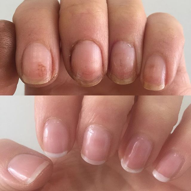 Zoya\'s New Naked Manicure system repairs and corrects the hyper ...