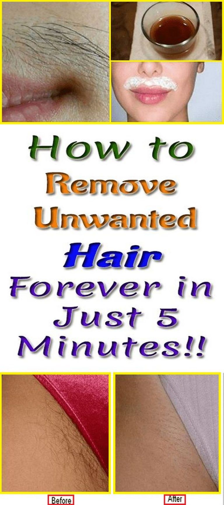 Remove The Mustache And Other Unwanted Hair From The Body