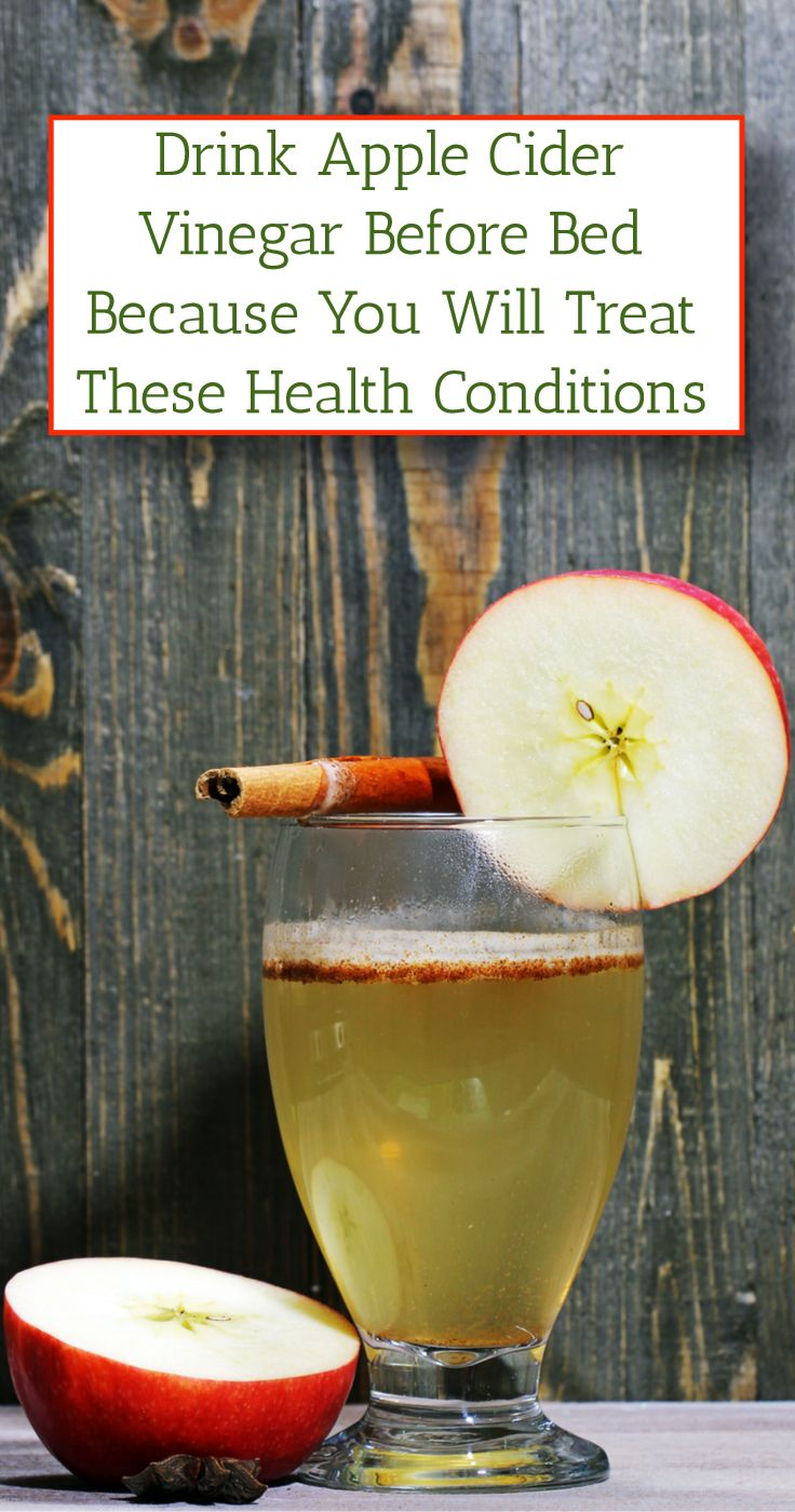 The consumption of apple cider vinegar diluted in water
