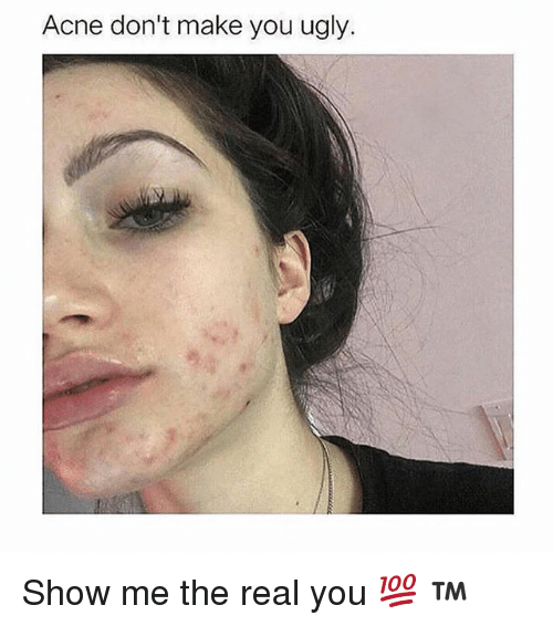 Emo Quotes About Suicide: Just A Reminder That Acne Doesn't Make You Ugly Xx