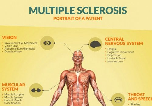 research papers on multiple sclerosis Multiple sclerosis informative outline college admission essays your college admission essays will give the college admission basics of writing a research paper.