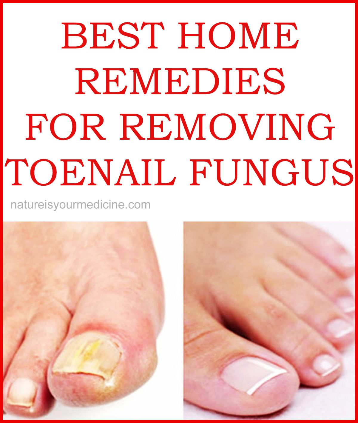 BEST HOME REMEDIES FOR REMOVING TOENAIL FUNGUS | HealthyAndNaturally ...