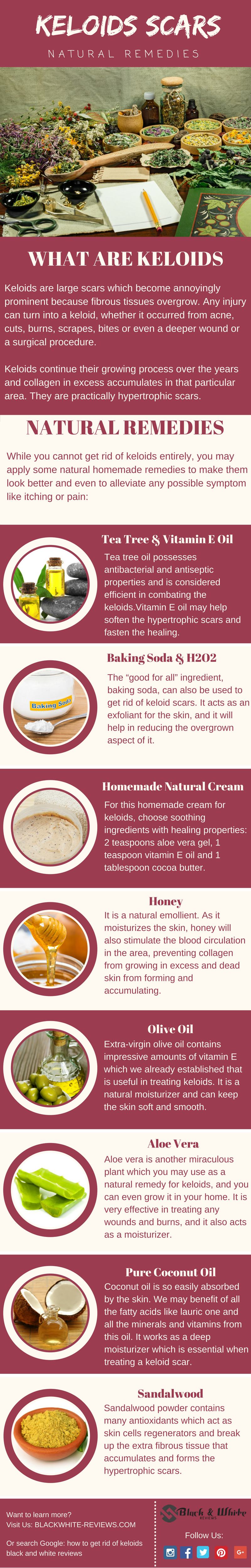 how to get rid of keloids 21 most used remedies for scars removal