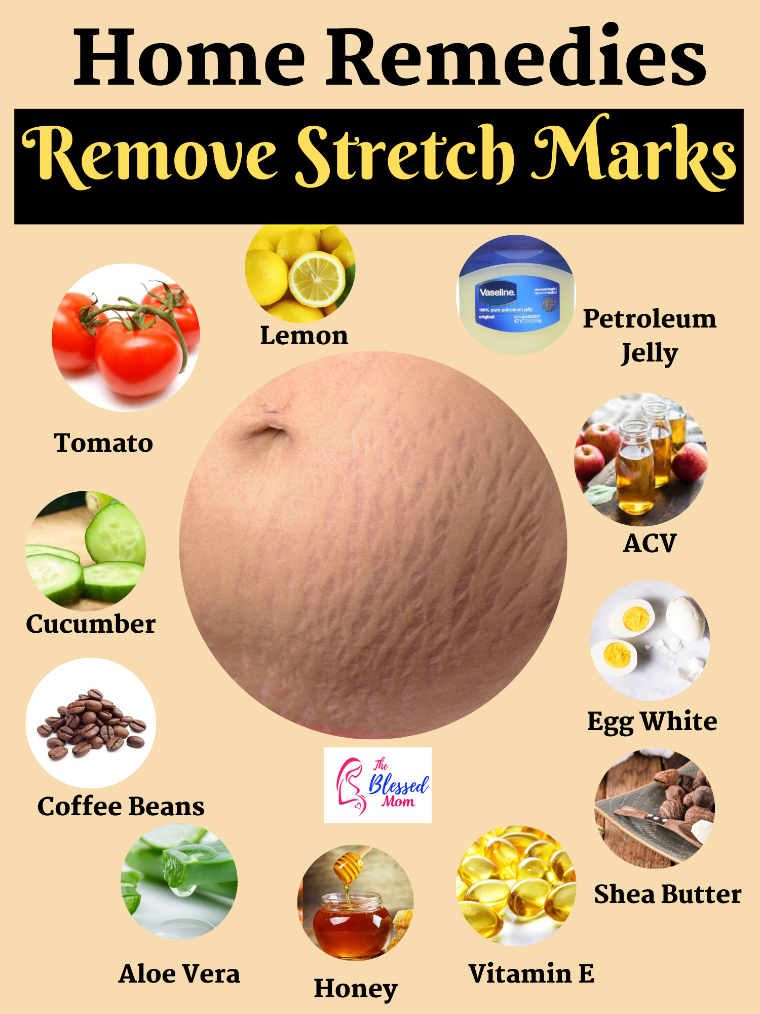 How To Get Rid Of Stretch Marks Naturally ( Causes