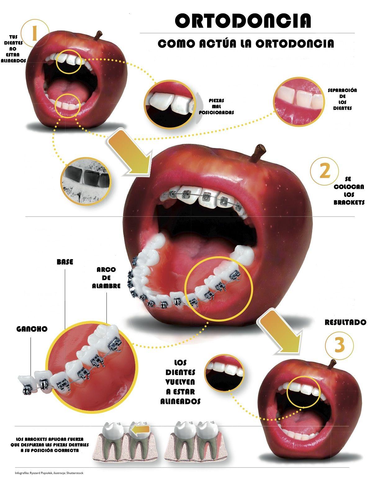 #ortodoncia #dental