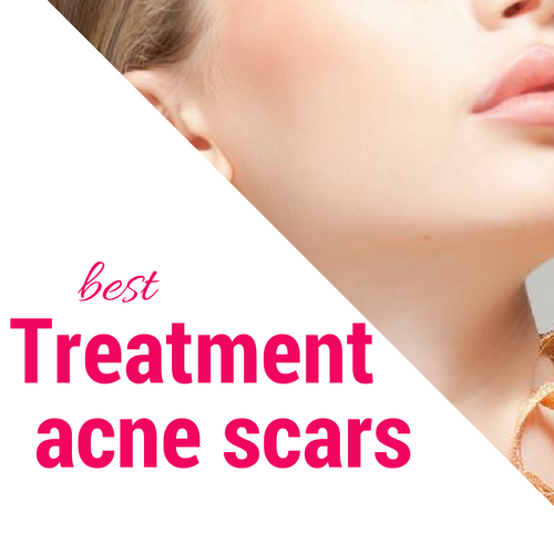 Get only the best treatment with the best result from the most reliable laser skin care clinic in Dubai - Medical Village http://imgur.com/a/tXpIr