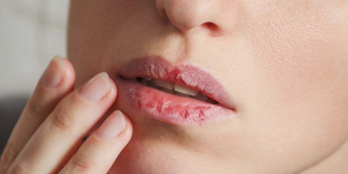 Essential Oils For Chapped Lips Dry And Split Lips Which One To