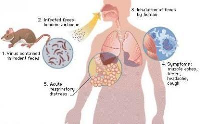 Hantavirus Pulmonary Syndrome (HPS) Observe for S/S of ...