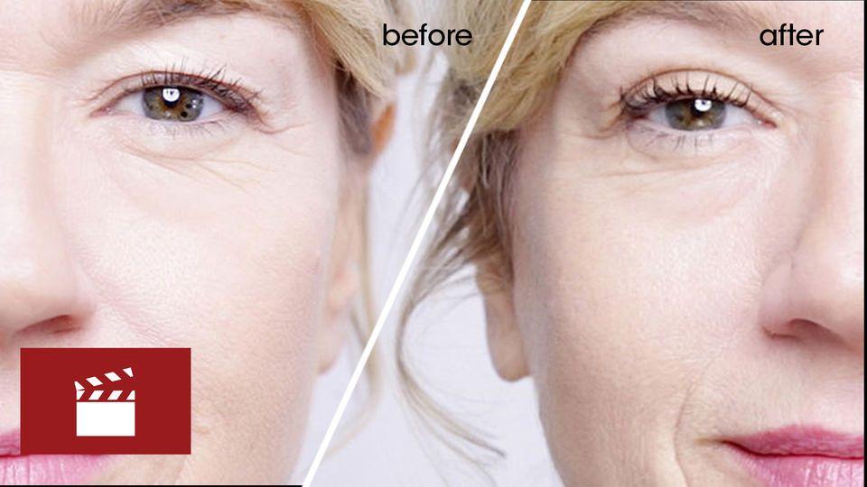 Magicstripes your surgeryfree eye lift Eye lift