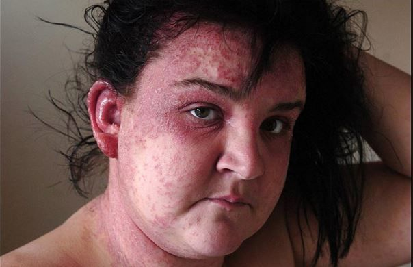 Hypoallergenic Hair Dye Brands And Products Allergy Can Show Severe Symptoms On The Face Scalp