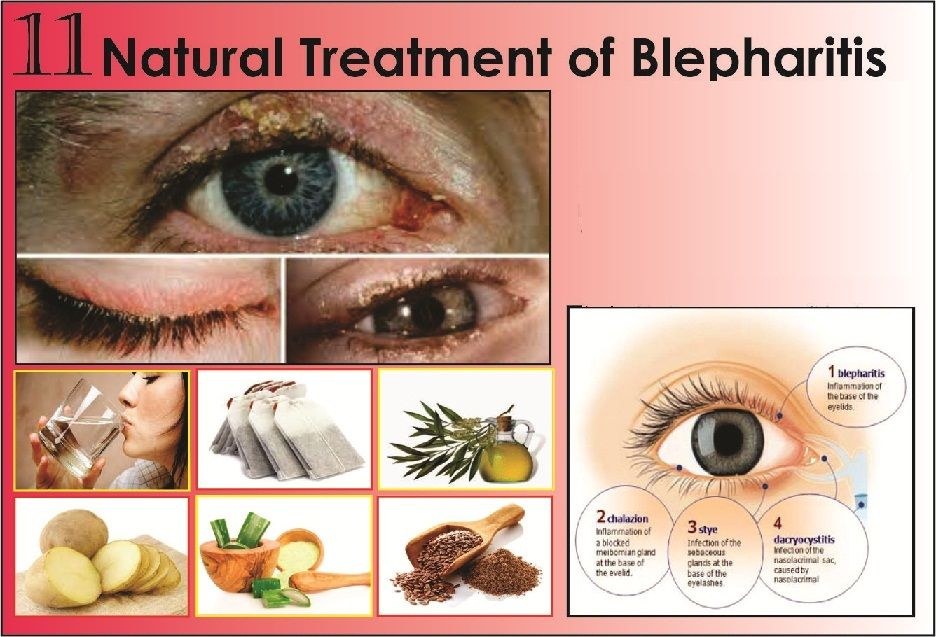 11 Best Natural Treatments Of Blepharitis Blepharitis