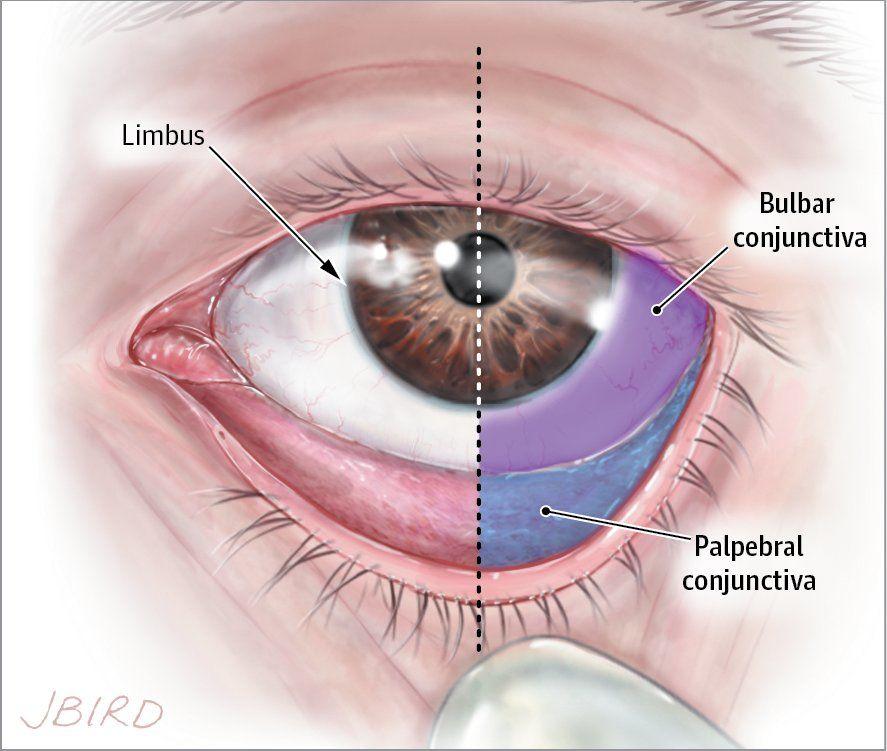 Image result for conjunctiva   Opthalmology   Gross ...