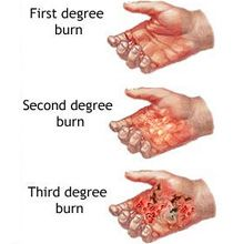 difference in 1st and 2nd degree burns