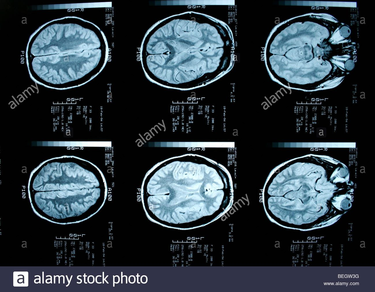 MRI Brain With And Without Contrast