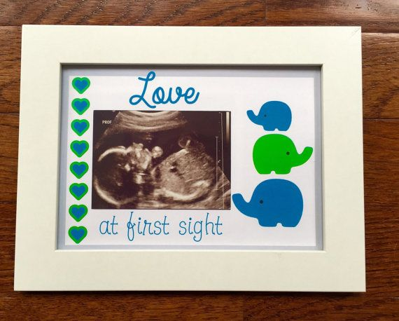 Ultrasound Frame Baby Picture Love at First Sight Sonogram | Baby ...