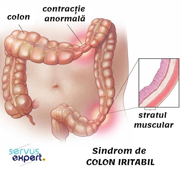 sindrom de colon iritabil dieta de detoxifiere