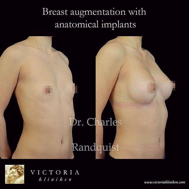 bröstförstoring anatomiska implantat