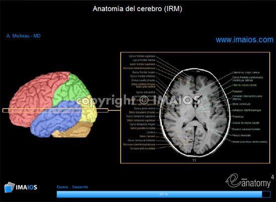 Anatomía del cerebro (IRM) - atlas de anatomía humana de sección ...