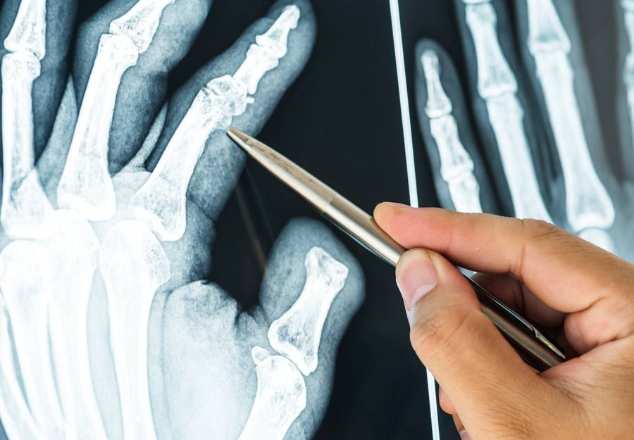 16++ Osteoporosis in hands and fingers info