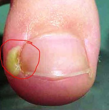 ingrown-toenail-pus-pocket