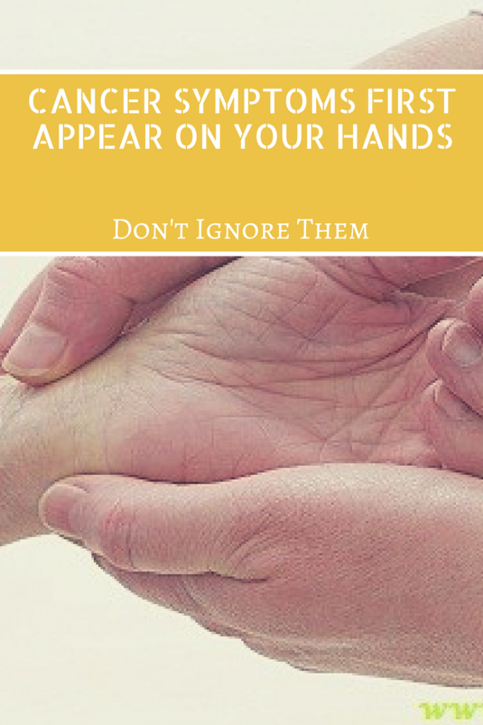 Cancer Symptoms First Appear on Your Hands – Don't Ignore