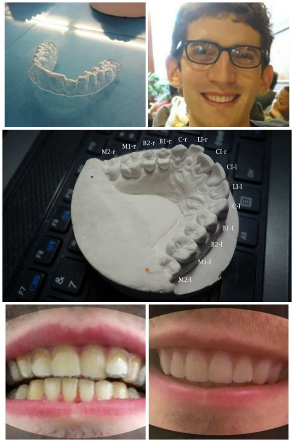 student designs his own braces using $60 and a 3-d printer | (18 ...
