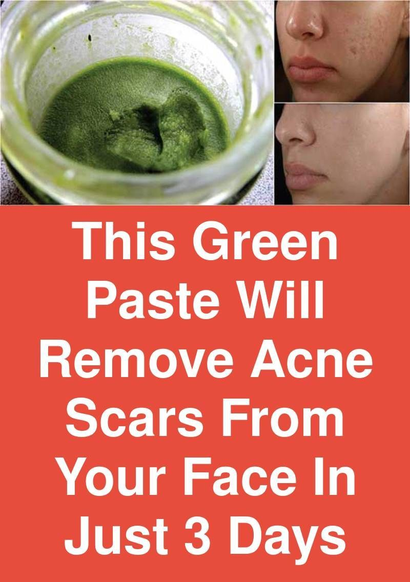 This green paste will remove acne scars from your face in just