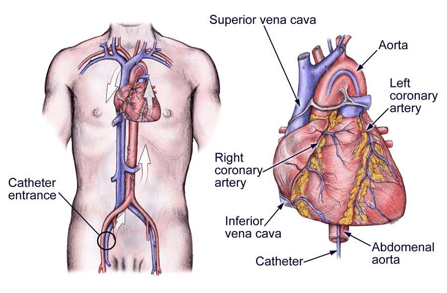 Image Detail For Cardiac Catheterization Left Heart Nursing