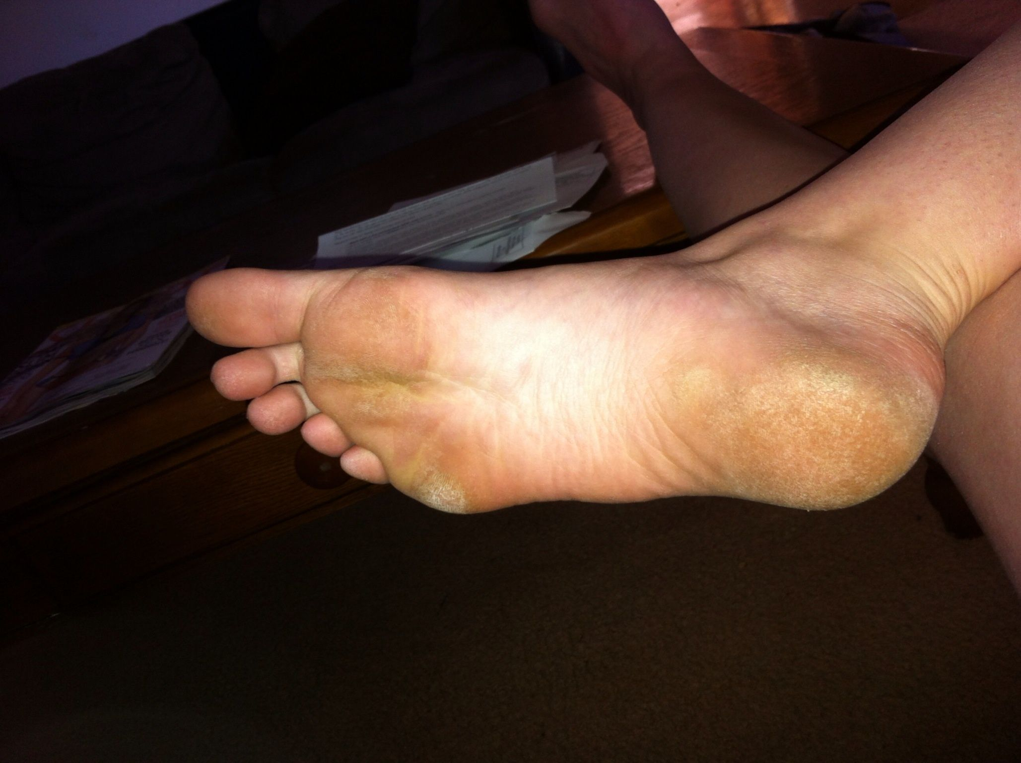 Home Remedies for Dry, Cracked, Calloused or Rough Feet